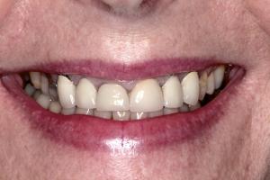 4. Pre-op Smile copy